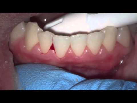 evaluating bleed gums