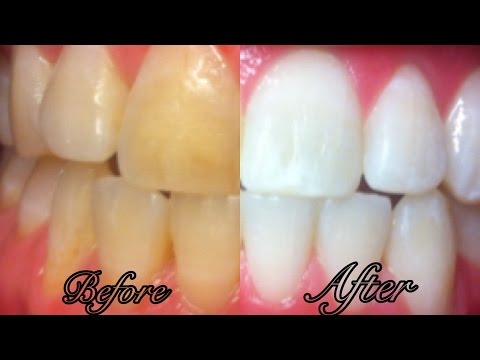 Thumbnail: How To Whiten Teeth at Home in 3 Minutes - SIMPLE