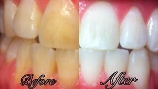 How To Whiten Teeth at Home in 3 Minutes