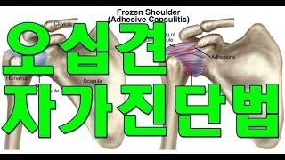 오십견(Frozen Shoulder) 자가진단