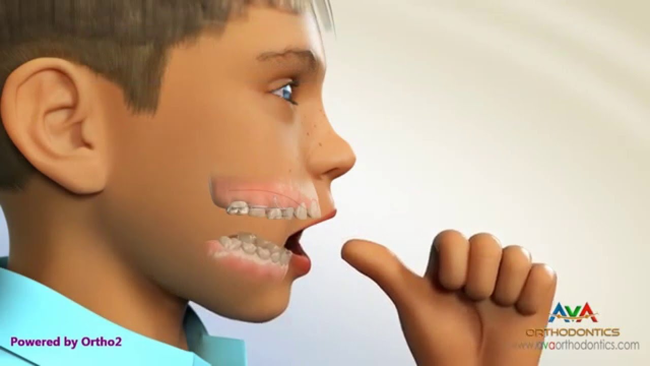 Congratulate, this thumb sucking orthodonture thanks