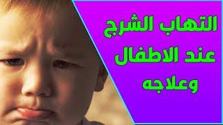 اسباب واعراض وعلاج التهاب فتحة الدبر الشرج عند الاطفال