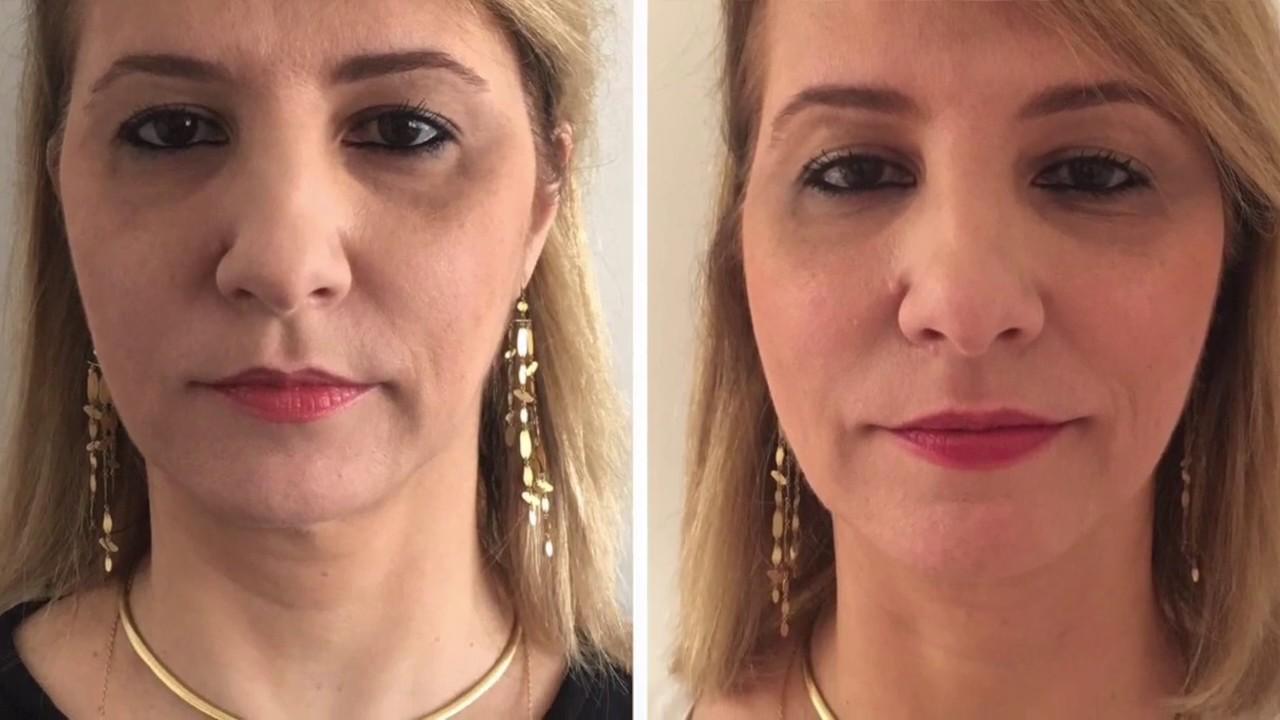 Roberta Jungmann entrevista a dermatologista Cláudia Magalhães - YouTube 9f5c3f6f9d