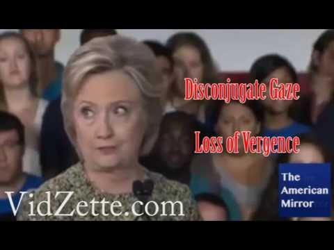 Hillary Clinton Parkinson