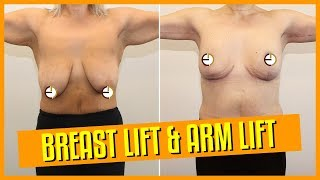 Breast Reduction/Lift and Arm Lift Surgery