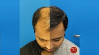 Hair Transplant Surgery -Hasson and Wong 5300 Grafts