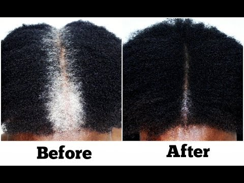 How To Turn White Or Grey Hair Into Black Naturally No Chemicals Dye Step By Step