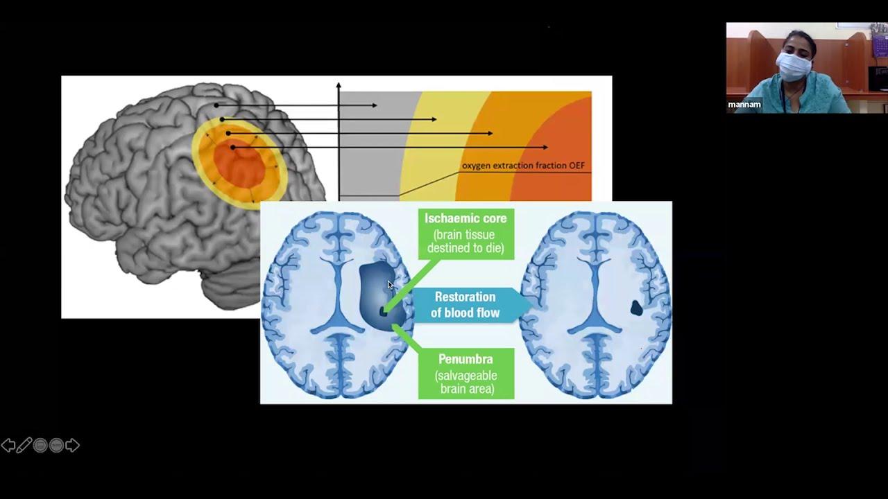 Imaging in arterial stroke- Dr Pavithra Mannam