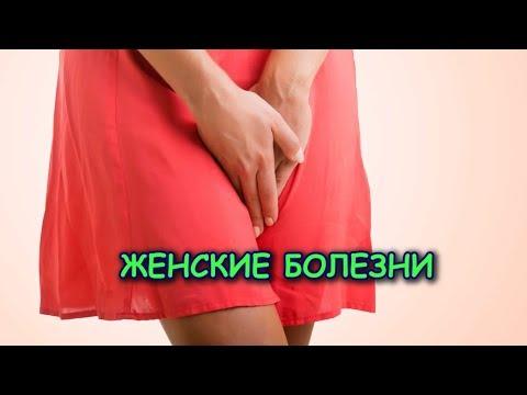 Лечение ТРИХОМОНАДНОГО КОЛЬПИТА и др. женских болезней