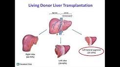 hqdefault - Liver And Kidney Transplantation
