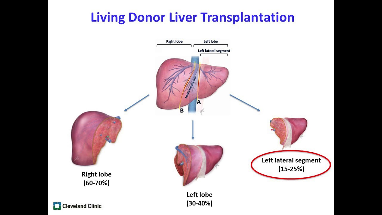 Patient Education Living Donor Liver Transplantation Youtube