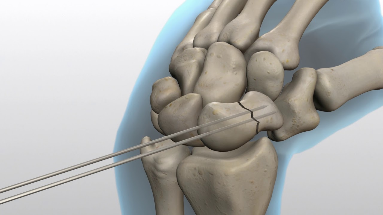 Scaphoid (Navicular) Fractures - Dr  Groh