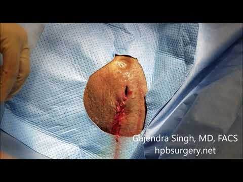 Incision And Drainage Thigh Abscess