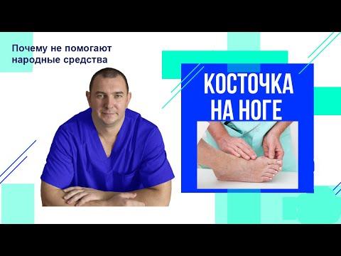 Как избавиться от косточки на большом пальце стопы / Почему народные средства не помогают