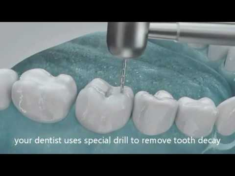 How Dentist fill cavities and holes in tooth