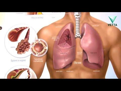 Как протекает рак легких