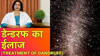 डेन्डरफ / रूसी  का ईलाज || Dandruff Treatment