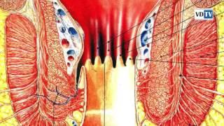 Лечение геморроя уникальными изобретениями в волгоградской клинике «Движение»
