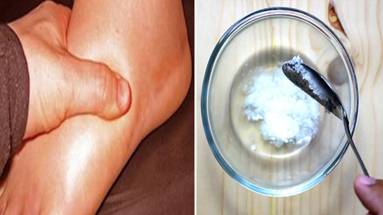 picioarele umflate și rănite dureri de gleznă umflături și febră