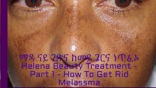 ማዳ ናይ ገጽና ከመይ ጌርና ነጥፈኦ Helena Beauty Treatment - Part 1 - How To Get Rid Melassma