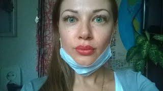 Татуаж губ. видео До первичной процедуры и спустя 1 час.