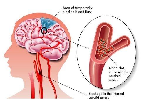 stroke cerebrovascular accident youtube