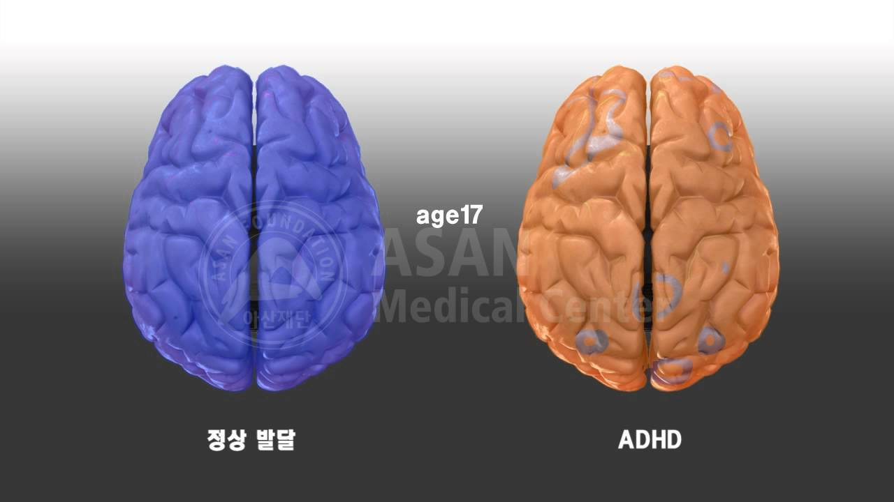 Compare Normal Vs ADHD Brain