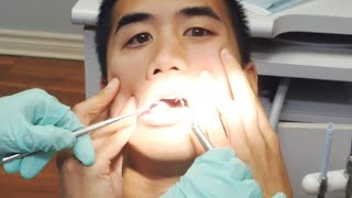 Video Can't Feel My Face - played with dentist equipment. download MP3, 3GP, MP4, WEBM, AVI, FLV Juli 2018