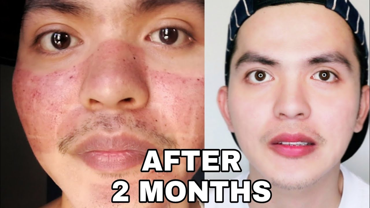 MY FACE After Fractional CO2 Laser Treatment + Q&A