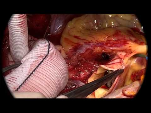 Emergency Operation for Acute type A Aortic Dissection by Echo-guided Direct Aortic Cannulation
