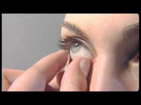 Kontakt Lens Cikartilir