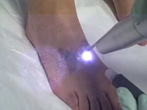 Tattoo Removal - Removal of Butterfly Tattoo on Foot at Dr. TATTOFF Laser Tattoo Removal Clinic