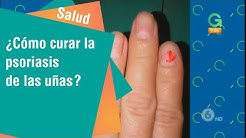 ¿Cómo curar la psoriasis de las uñas?