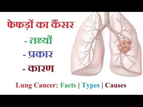 कैंसर व कैंसर के प्रकार — विकासपीडिया