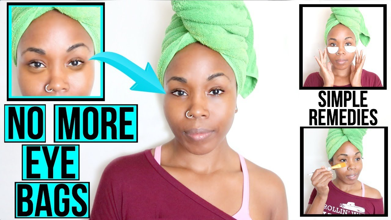 How to Get Rid of DARK EYE CIRCLES & UNDER EYE BAGS FAST ...