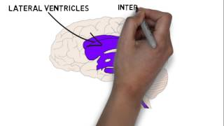 2-Minute Neuroscience: The Ventricles