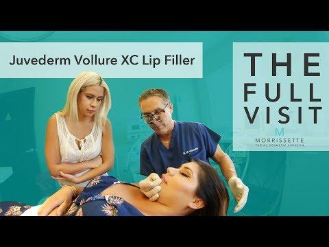 The Full Visit:  Lip Filler Juvederm Vollure XC by Dr. Michael Morrissette in Ventura