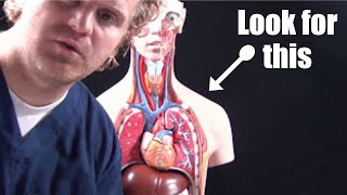Pneumothorax (collapsed lung) Animation, Treatment, Decompression, Pathophysiology