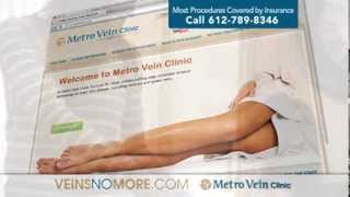 MetroVein commercial Thumbnail
