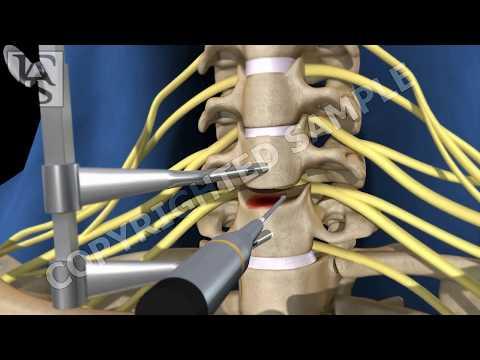 Anterior Cervical Fusion C6 C7