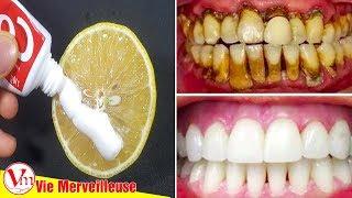 Blanchiment Des Dents Par Cette Méthode | Transformer Les Dents D'or en Blanc Naturel
