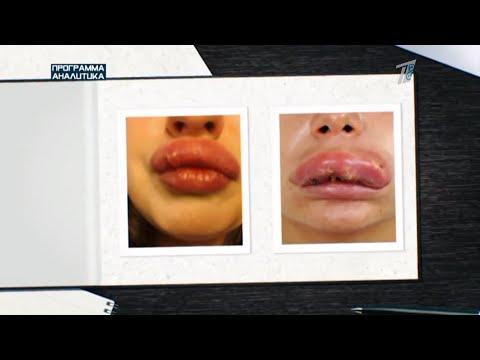 Рулетка красоты: косметологи без лицензии