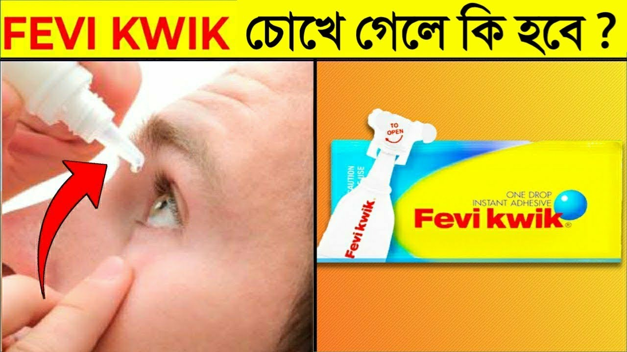 কী হবে যদি FeviKwik আপনার চোখের ভেতর চলে যায়? What If FaviKwik Goes Inside The Eyes? Amazing Facts
