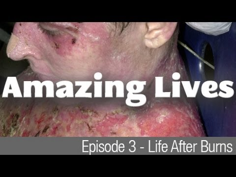 Amazing Lives - Life After Burns - man barely survives from plane crash