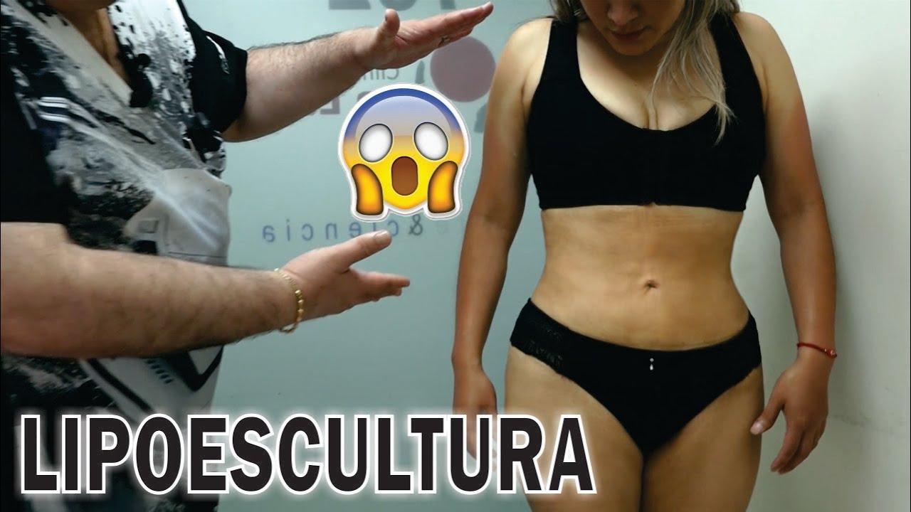 LIPOTRANSFERENCIA GLUTEA 🍑 LIPOSUCCIÓN ANTES y DESPUÉS 👙 Dr ALBERTO CALVO QUIROZ