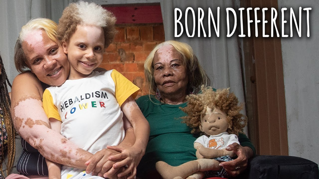 The Family With 'Piebald' Skin | BORN DIFFERENT