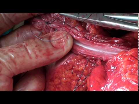 Boari flep uzun üreter onarımı-Extended Boari Flap for Long Ureteral Defects (Dr.F. Fatih ONOL)
