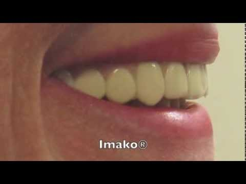 Extreme Closeup: Imako vs. SecureSmile