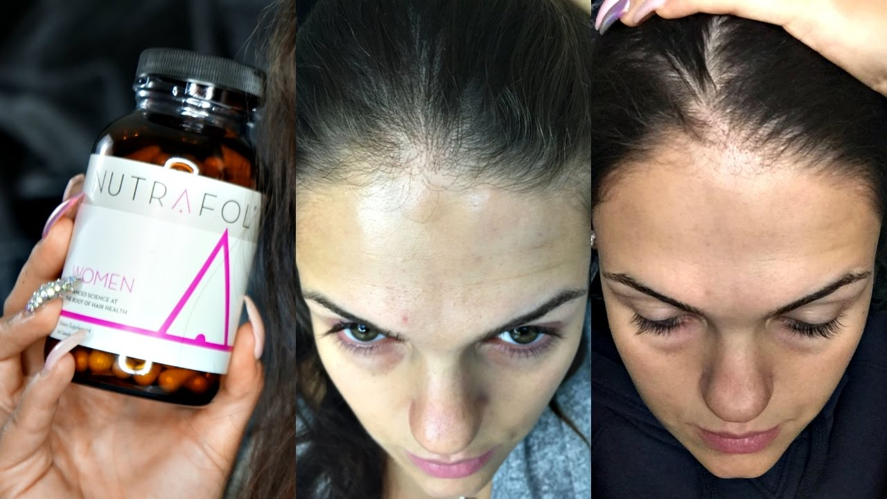 Nutrafol Hair Growth Testing & Review