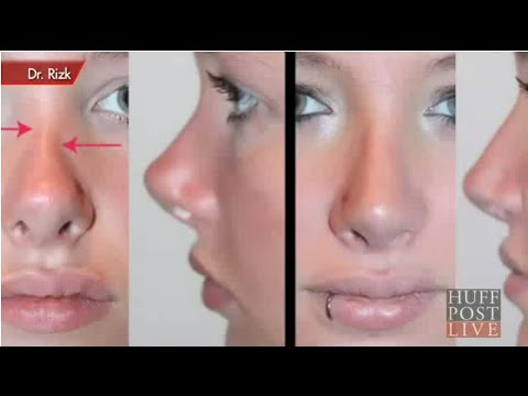 Revision Rhinoplasty & How to Avoid Plastic Surgery Nightmares